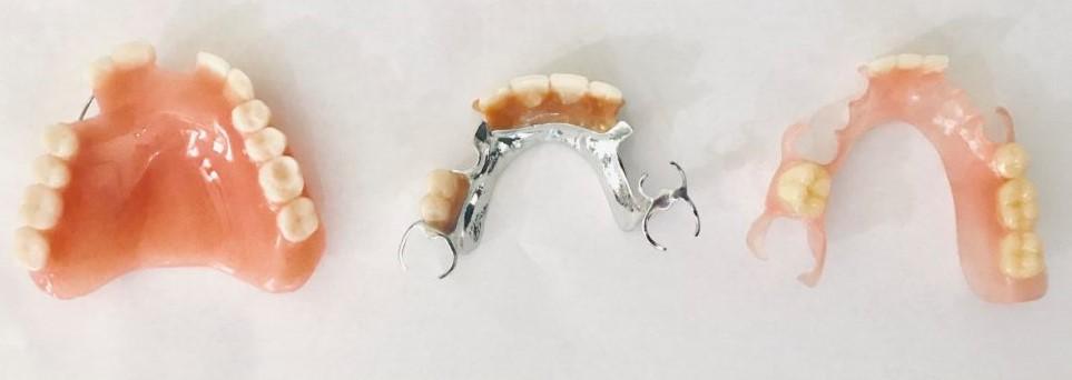 dentures-1024x475 (2)