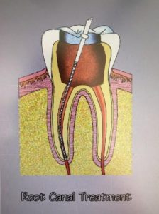 roor-canal-treatment-with file