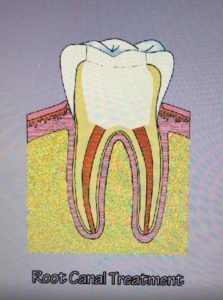 root canal gp