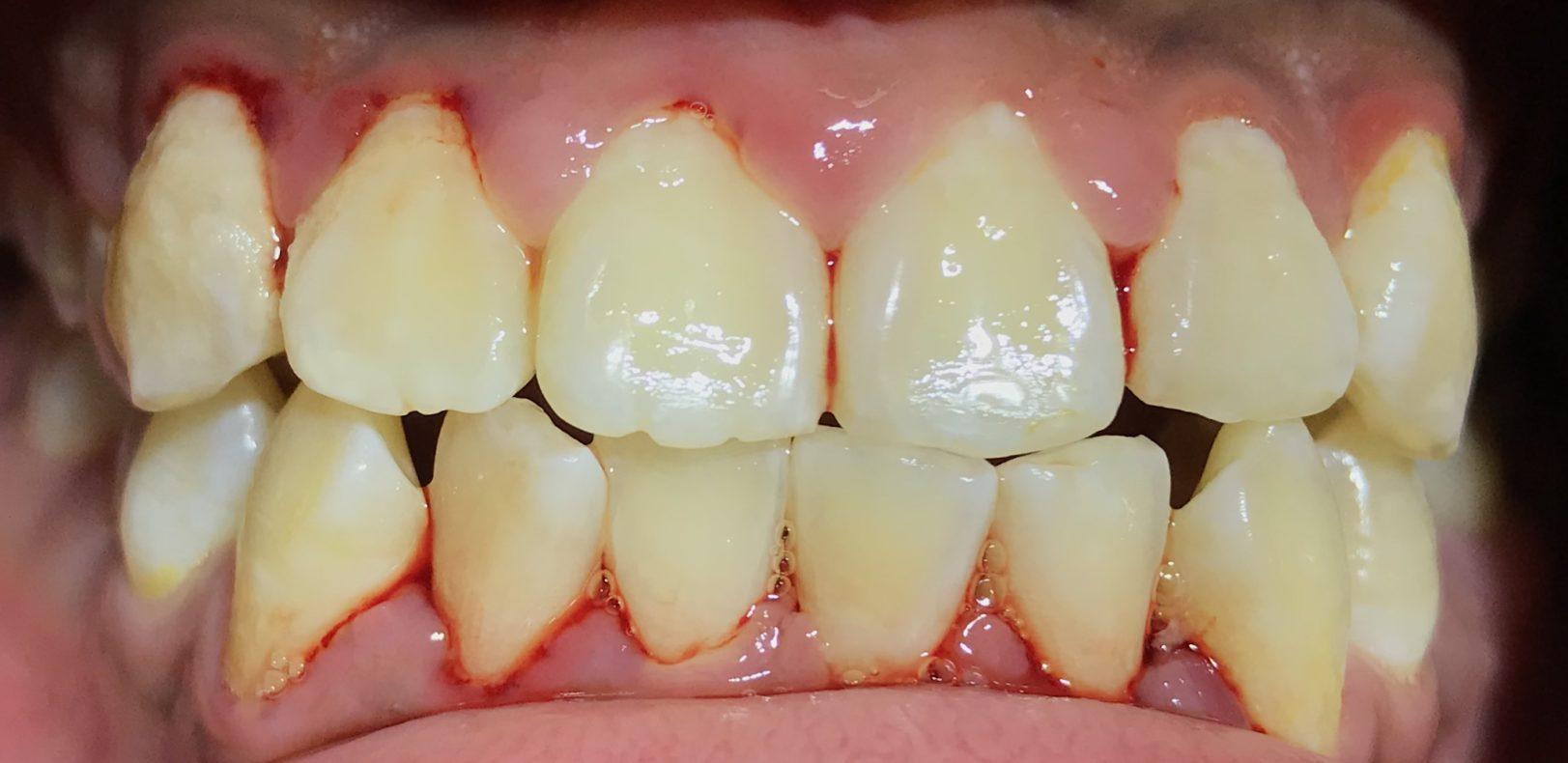 unhealthy-gums-1-e1560614029941